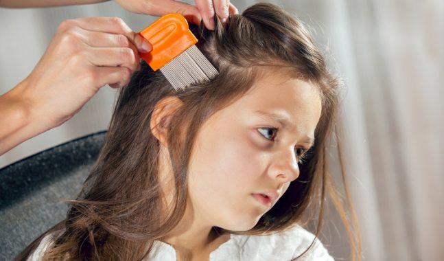 Pidocchi  9 cose che devi fare se tuo figlio se li è presi a scuola ... 7e89b75d64a6